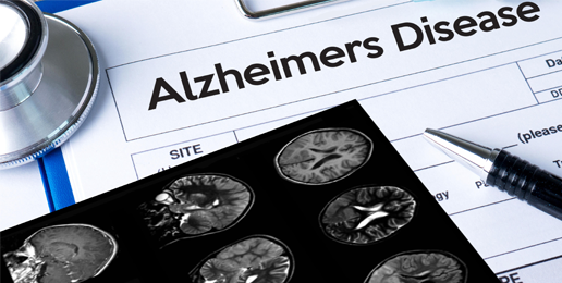 Marketing Death and Alzheimer's Disease